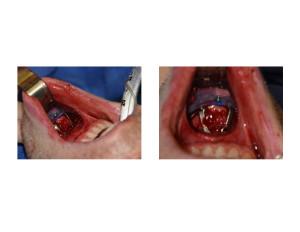 Sliding Genioplasty Chin Implant Combination Dr Barry Eppley Indianapolis