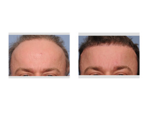 Total Forehead Reduction result front view Dr Barry Eppley Indianapolis