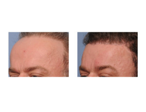 Total Forehead Reduction result oblique view Dr Barry Eppley Indianapolis