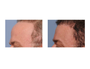 Total Forehead Reduction result side view Dr Barry Eppley Indianapolis