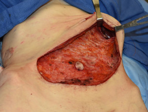 Tummy Tuck Exposure of Ribs Dr Barry Eppley Indianapolis