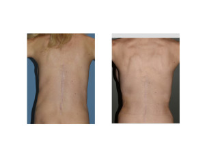 Waistline Narrowing by Rib Removal Surgery results back view Dr Barry Eppley Indianapolisjpg