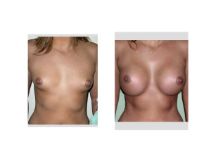 Wide Spaced Breast Augmentation result front view Dr Barry Eppley Indianapolis