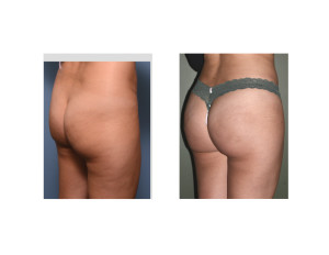 Braziilan Buttock Lift results oblique view Dr Barry Eppley indianapolis