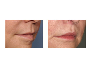 Cali Lip Lift results oblique view Dr Barry Eppley Indianapolis
