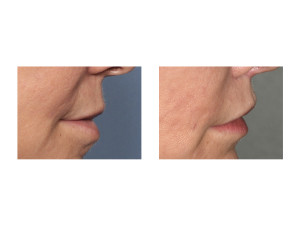 Cali Lip Lift results side view Dr Barry Eppley Indianapolis