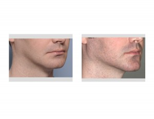 Chin and Jaw Angle Jawline Augmentation result oblique view