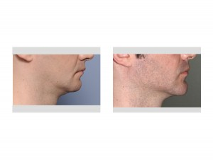Chin and Jaw Angle Jawline Augmentation result side view