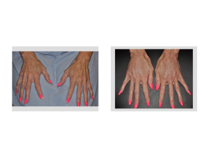 Fat Injections to Hands Dr Barry Eppley Indianapolis