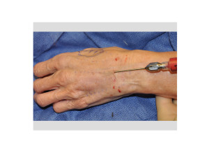 Fat Injections to the Hands Dr Barry Eppley Indianapolis