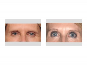 Female Pretrichial Browlift result front view Dr Barry Eppley Indianapolis