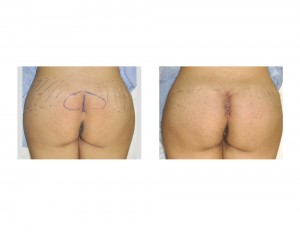 Intraoperative Intramuscular Buttock Implant results 230cc