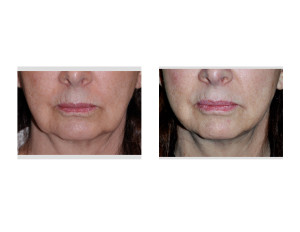 Kybella Injections for Jowls result front view Dr Barry Eppley Indianapolis