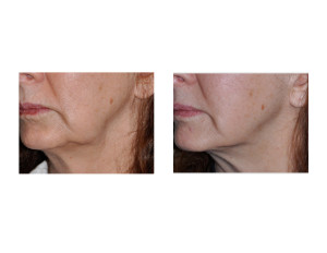 Kybella Injections for Jowls result oblique view Dr Barry Eppley Indianapolis