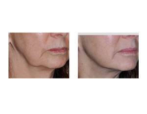 Kybella Injections for Jowls result right oblique view Dr Barry Eppley Indianapolis