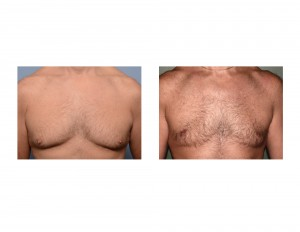Mark Gynecomastia Reduction result front view