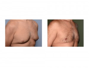 Mark Gynecomastia Reduction result oblique view