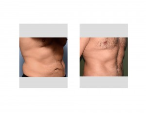 Mark Tummy Tuck result oblique view