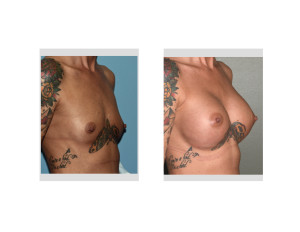 Moth Breast Augmentation result oblique view
