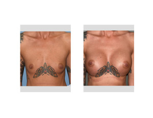 Moth Breast Augmentation results front view