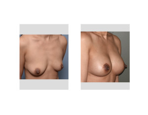 Nipple Lift BAM results oblique view