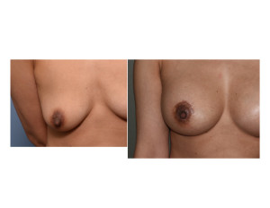 Right Nipple Lift Scar Dr Barry Eppley Indianapolis