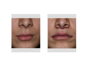 Subnasal Lip Lift and Mouth Widening Procedure immediate result front view Dr Barry Eppley Indianapolis