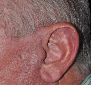 older make facelift scar