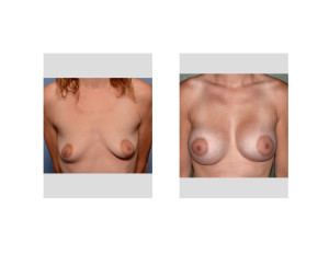 Breast Asymmetry Breast Augmentation