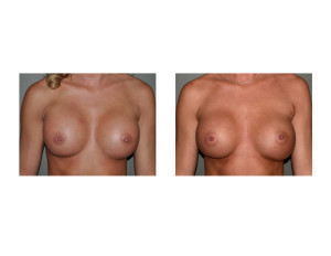 Breast Implant Settling front view Dr Barry Eppley Indianapolis