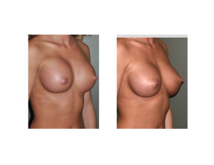 Breast Implant Settling oblique view Dr Barry Eppley Indianapolis