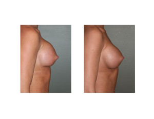 Breast Implant Settling side view Dr Barry Eppley Indianapolis