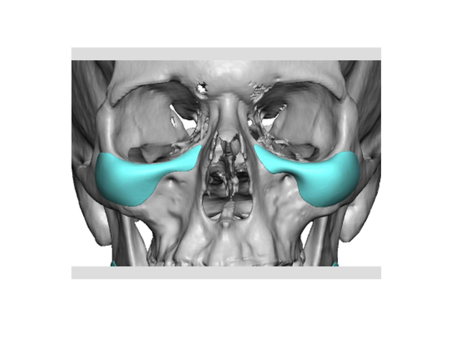 Types Of Facial Implants