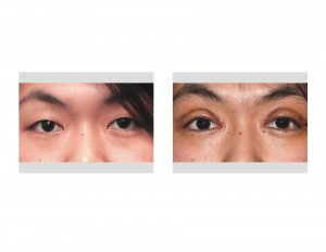Double Eyelid Surgery swelling Dr Barry Eppley Indianapolis