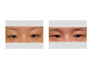 Double Upper Eyelid and Lower Eyelid Love Band Surgery Dr Barry Eppley Indianapolis
