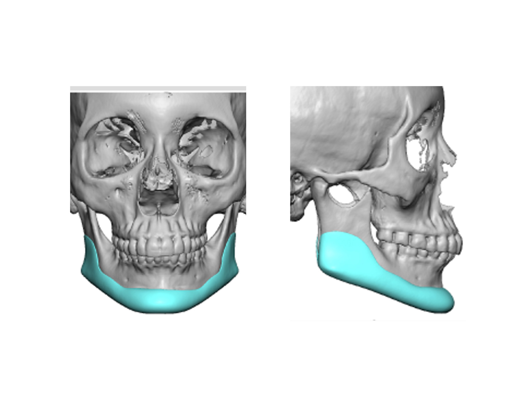 custom jawline implant Archives -
