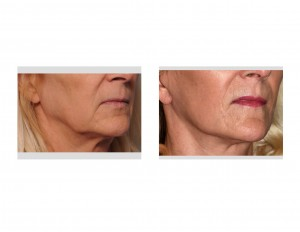 Female Lower facelift result oblique view Dr Barry Eppley Indianapolis