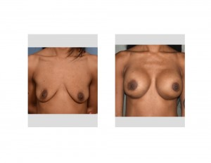 KA Breast Augmentation results front view