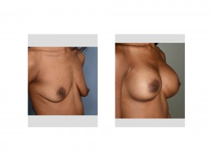 KA Breast Augmentation results oblique view