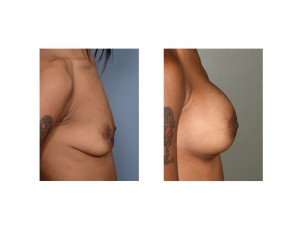 KA Breast augmentation results side view