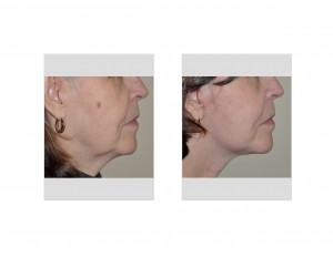 Limited Facelift (Quicklift) results side view Dr Barry Eppley Indianapolis