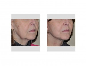 Limitred Facelift (Quicklift) results right oblique view Dr Barry Eppley Indianapolis