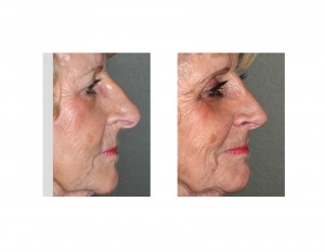 Mema Rhinoplasty result side view