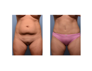 Mini Tummy Tuck with liposuction result front view