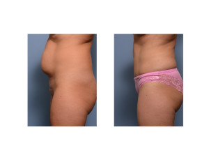 Mini Tummy Tuck withu liposuction  result side view