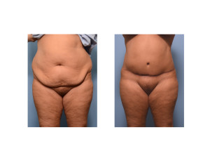 Realistic Extended Tummy Tuck result front view Dr Barry Eppley