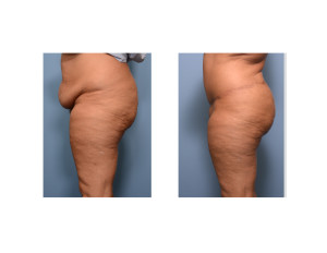 Realistic Extended Tummy Tuck result side view Dr Barry Eppley Indianapolis