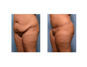 Realistic Tummy Tuck result oblique view Dr Barry Eppley Indianapolis