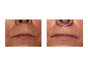 Subnasal Lip Lift with Lateral Vermilion Advancement markings dr barry eppley indianapolis