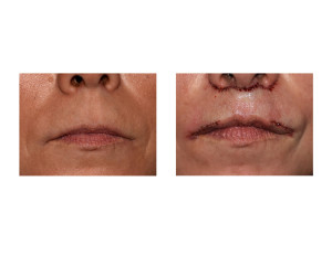 Subnasal Lip Lift with Lateral Vermilion Advancements result front view Dr Barry Eppley Indianapolis